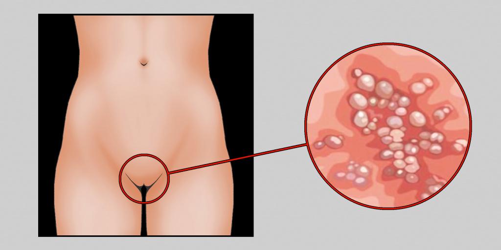 Генитальный герпес: проявления, диагностика, лечение