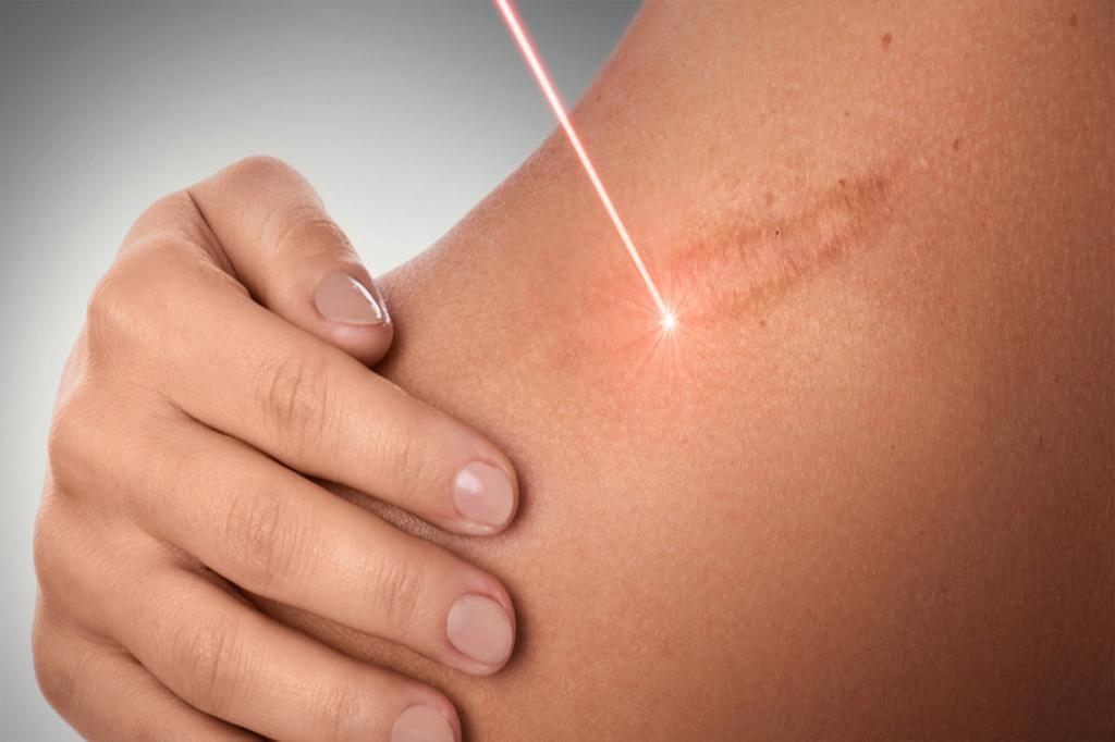 Как убрать рубцы и шрамы на теле